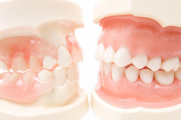 次のような歯並びでお悩みではありませんか?