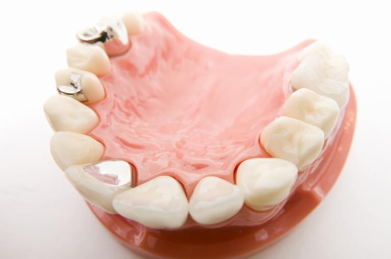 銀歯が目立つのが気になる方へ