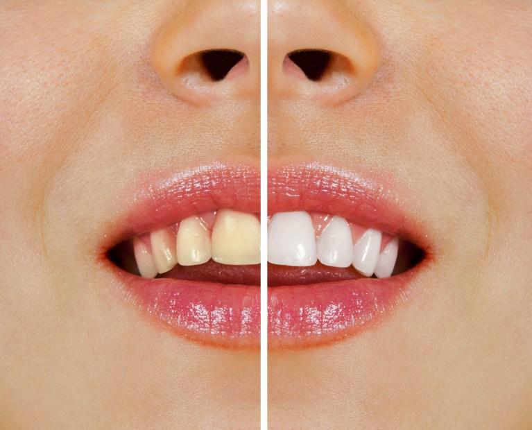 歯の黄ばみや変色が気になる方へ